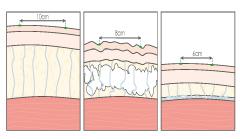 Horizontale und vertikale Schrumpfungsnotwendigkeit der Haut nach einer Fettabsaugung.