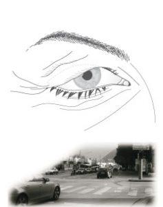 Hautüberschuss an den Oberlidern kann das Gesichtsfeld einschränken.